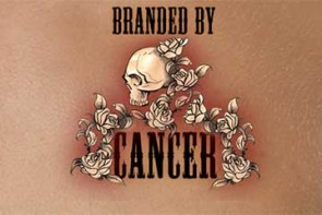 Branded by Cancer documentary image